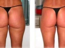 Душ Шарко для похудения, против целлюлита — фото: до и после
