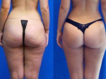 Душ Шарко: фото до и после - целлюлит на попе
