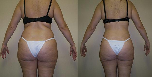 Душ шарко для похудения — фото до и после, похудение, от целлюлита.