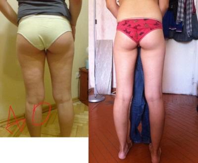 Похудение от душа Шарко - фото до и после